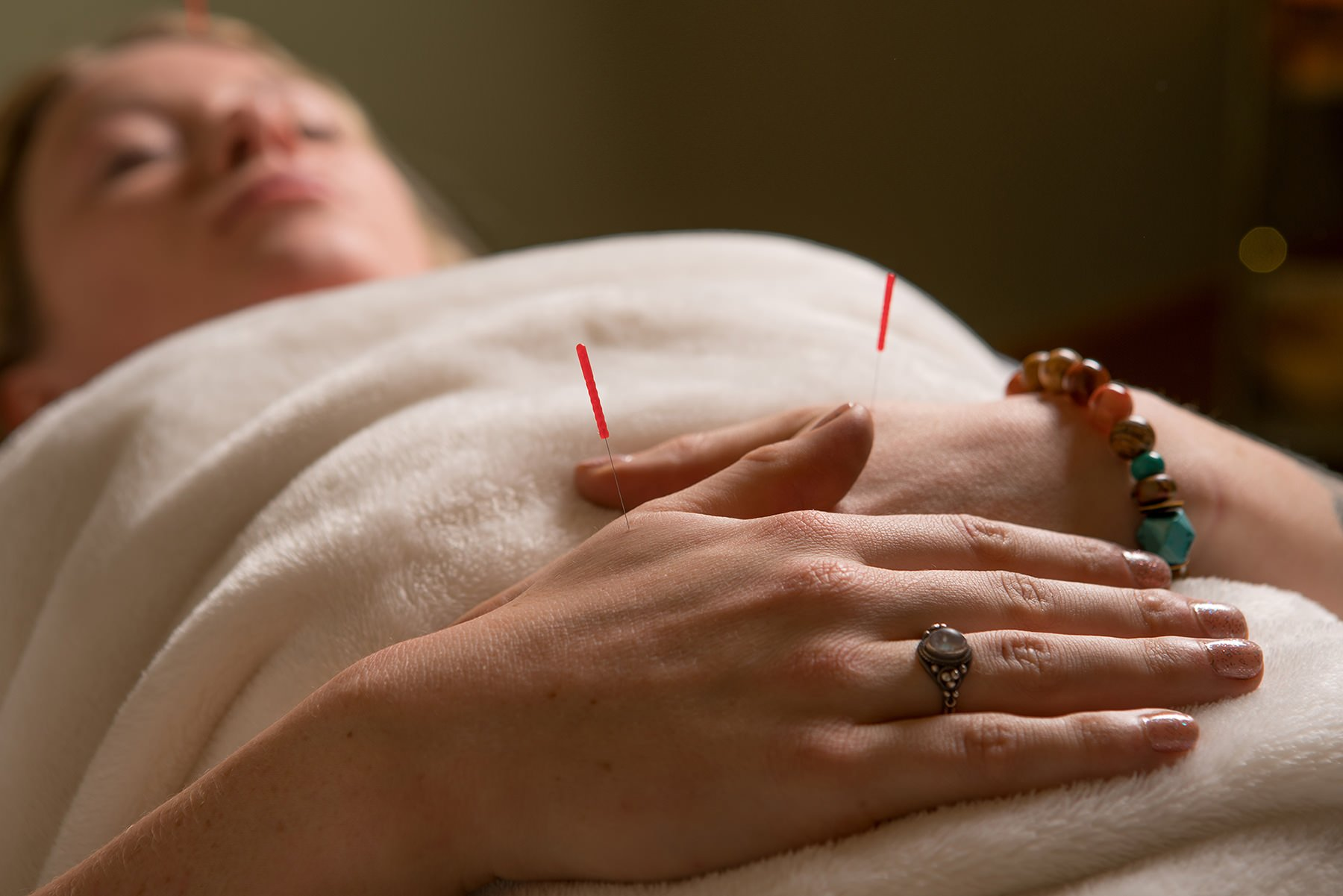 Two acupuncture needles in a woman's hands at The Sanctuary
